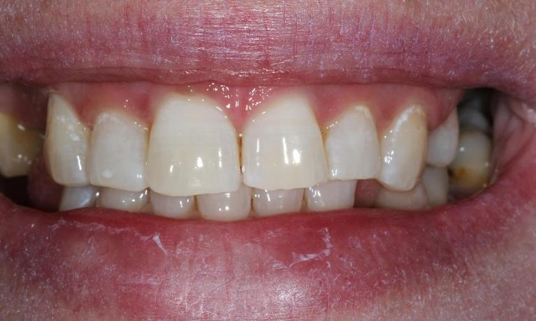 Whitening-Patient-2-After-Image