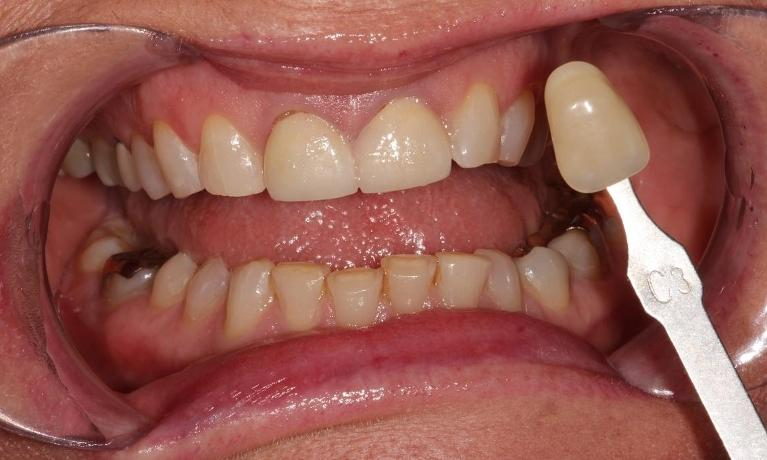 Whitening-Patient-1-Before-Image