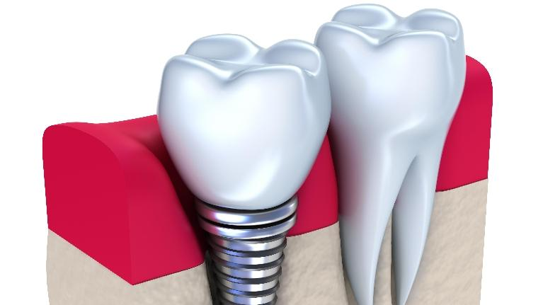 Dental Implants | Hermitage, PA | Thomas Family Dentistry