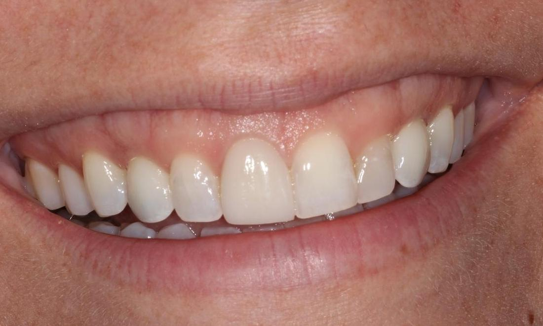 image of the same teeth after dental implants and crowns | Hermitage PA