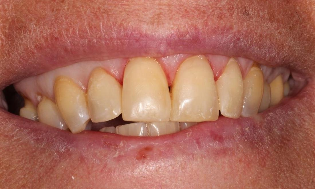 image of the same teeth following dental bonding | Hermitage PA