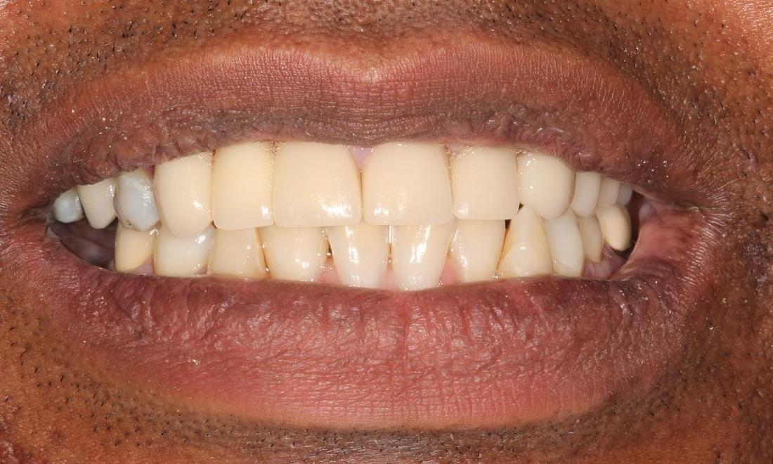 Image of the same teeth after crowns and bridges | Hermitage PA