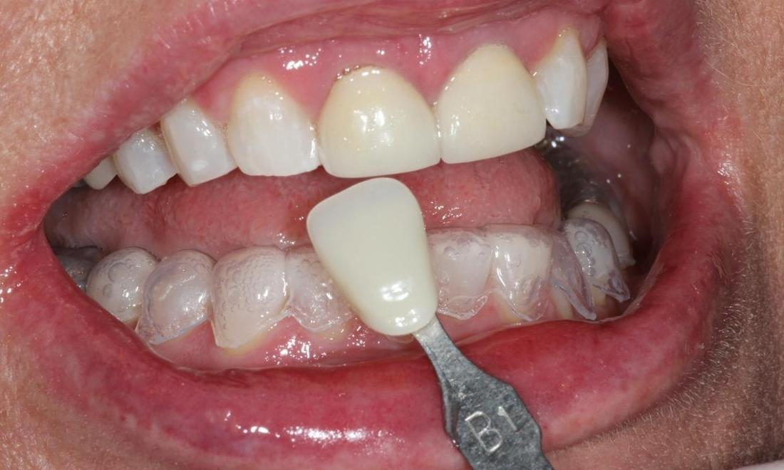 image of the same teeth after Zoom! Whitening | Hermitage PA