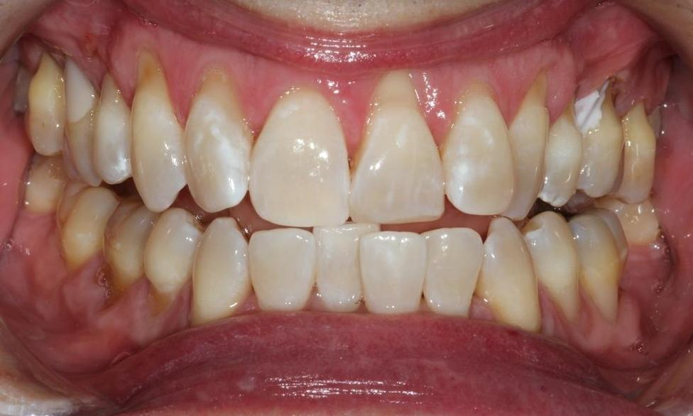 image of the same teeth after a one hour teeth whitening session | Hermitage PA