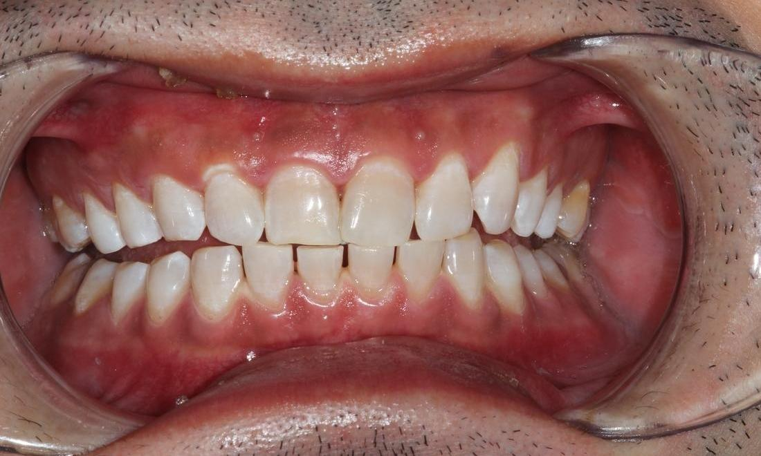 image of the same teeth after teeth whitening | Hermitage PA
