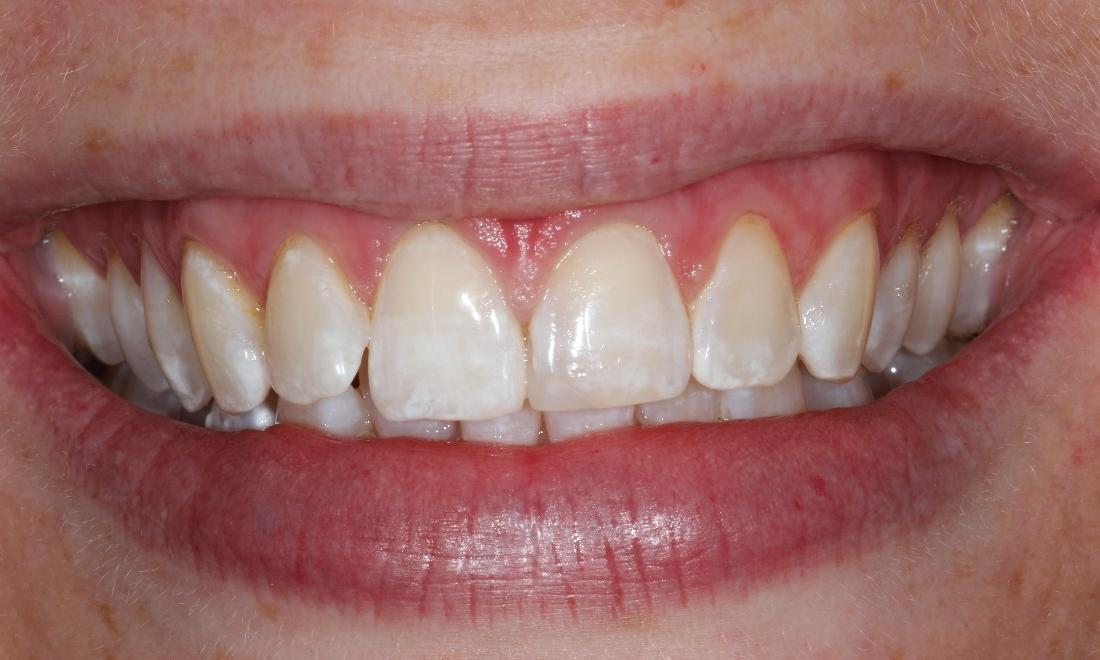 image of the same teeth after teeth whitening treatment | Hermitage PA