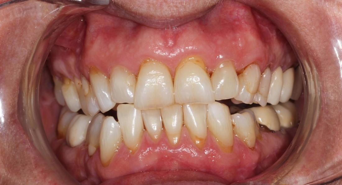 image of the same teeth after a take home teeth whitening product | Hermitage PA