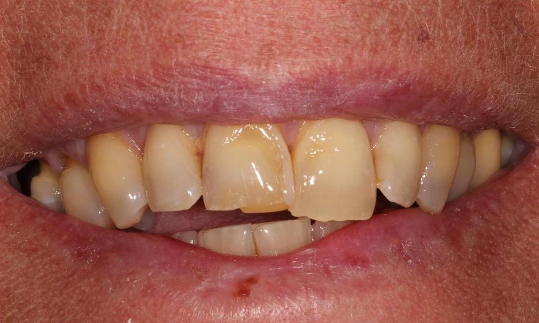 Image of chipped teeth | Hermitage PA