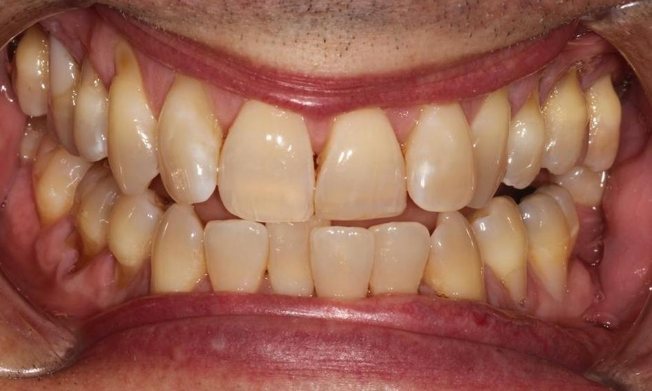 image of teeth before teeth whitening | Hermitage PA