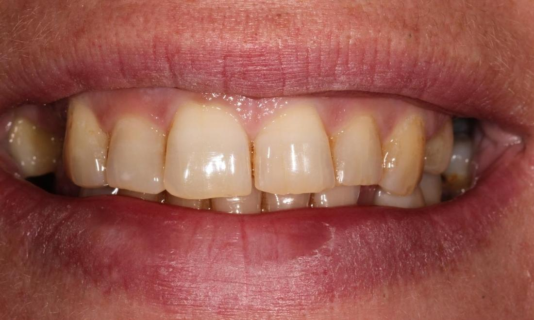 Image of discolored teeth | Hermitage PA