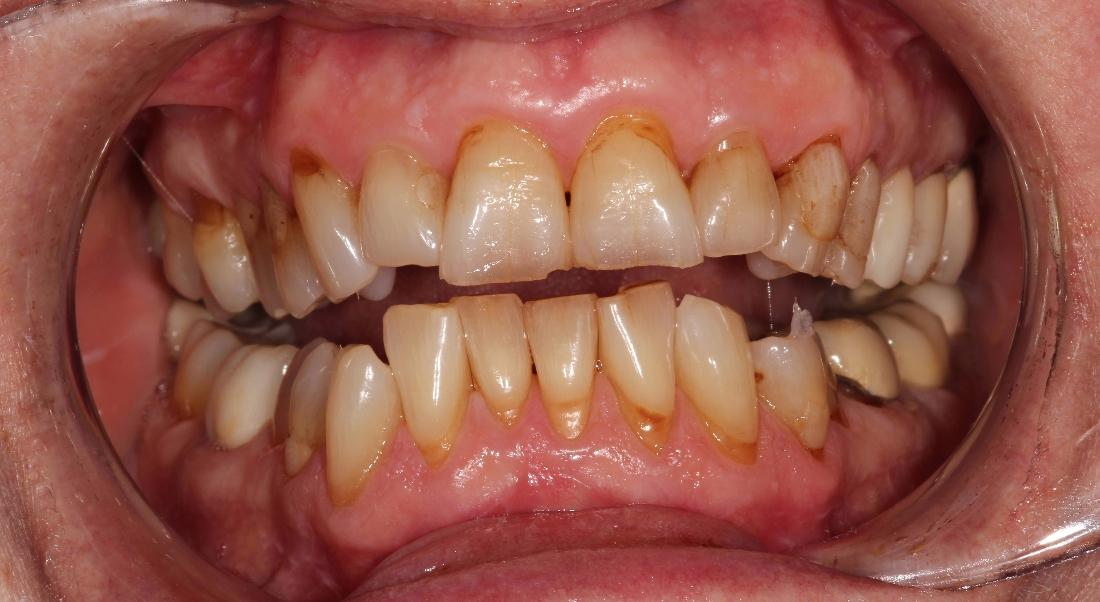 image of teeth before whitening treatment | Hermitage PA