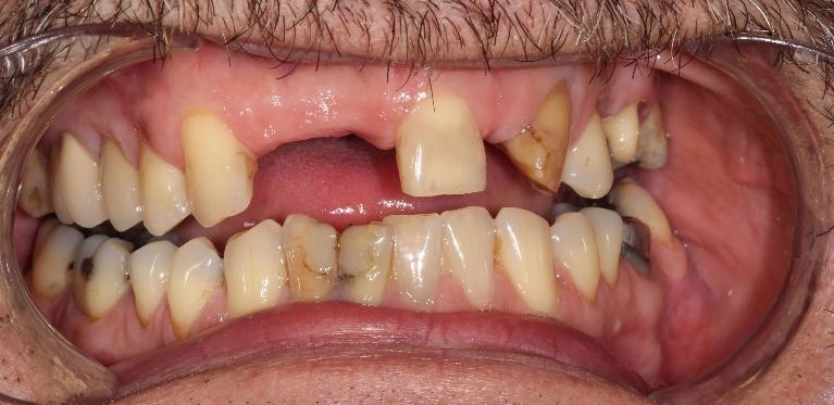 Crown-and-Bridge-Patient-2-Before-Image