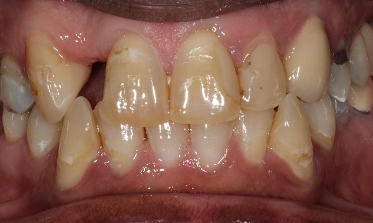 Crown-and-Bridge-Patient-1-Before-Image
